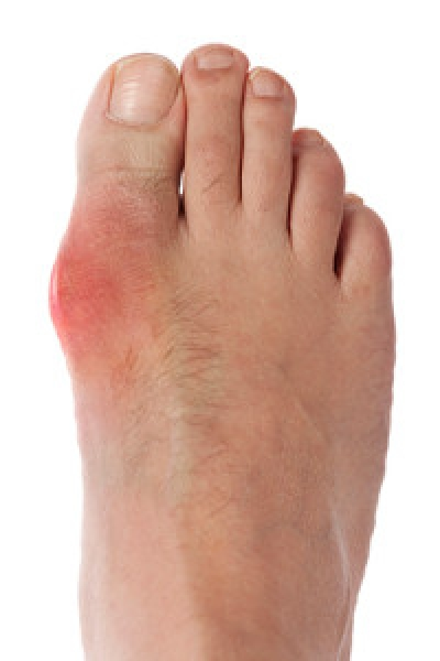 Foods That Will Lessen Your Chance of Gout Development