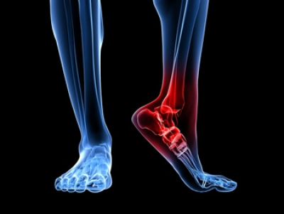 The Symptoms Associated with an Achilles Tendon Injury