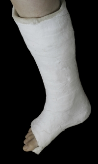 Symptoms of a Broken Foot