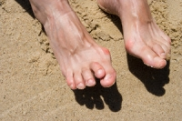 Possible Causes of Hammertoe