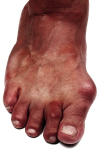 Symptoms and Causes of Bunions