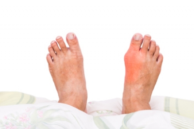 Arthritis and Gout