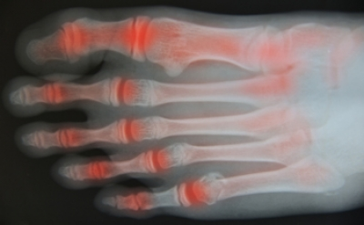 Toe Arthritis May Be Common